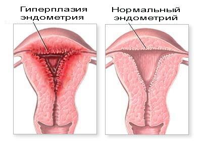 Анализ крови у беременных: основные показатели, их значение и норма