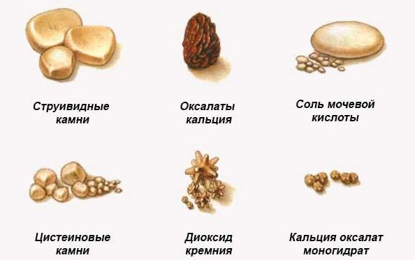 Почечные камни, симптомы, причины, диагностика и лечение