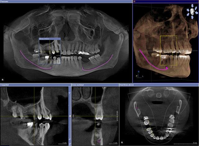 Рентгеновский снимок зубов: назначение, проведение рентгенограммы и противопоказания
