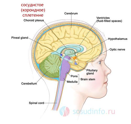 Киста сосудистого сплетения головного мозга у плода, ее причины, симптомы и следствия