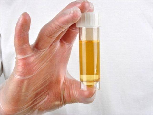 Большое количество лейкоцитов в моче: причины и лечение