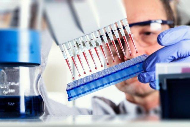 Общий анализ крови при ВИЧ: назначение и изменения показателей