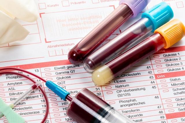 Что это - анализ крови ПТИ: назначение, расшифровка и методы нормализации протромбинового индекса
