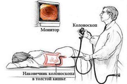 УЗИ толстой кишки: назначение, подготовка, процедура обследования и возможные заболевания кишечника