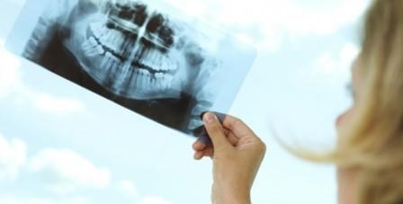 Влияние рентгена на беременность: особенности обследования и риски для плода