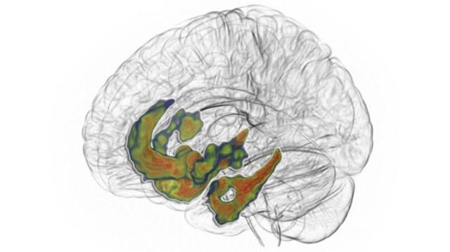 Гормон дофамин - функции, причины снижения и способы повышения