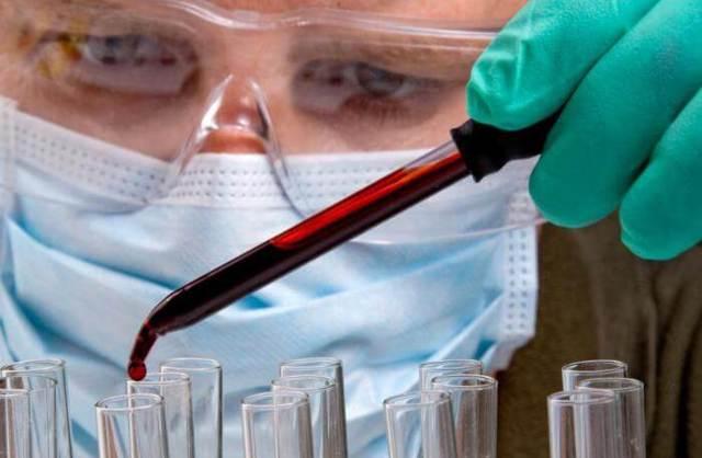 Анализ крови РМП - когда назначается и что показывает процедура?