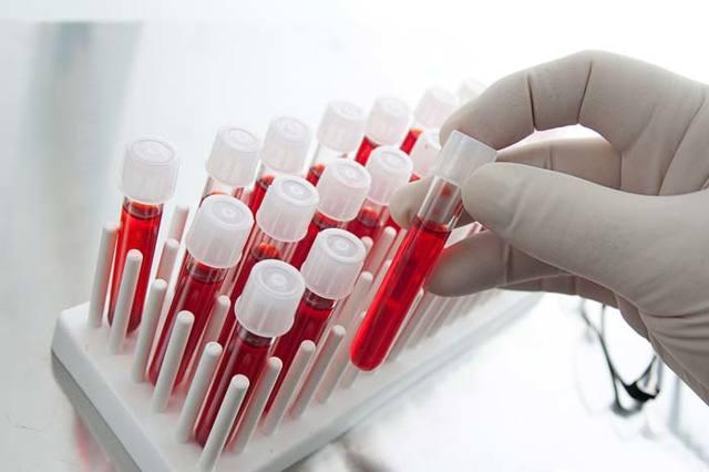 Повышен ХГЧ при беременности: причины и способы нормализации гормона
