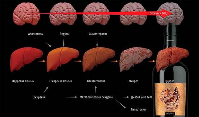 Печеночная энцефалопатия - симптомы, формы, стадии и лечение патологии