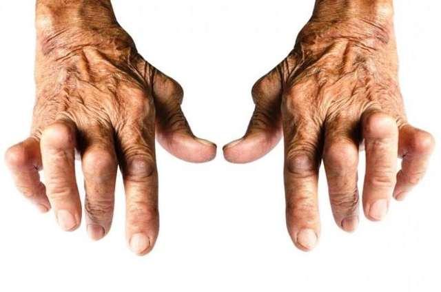 Ревматоидный артрит (РА) – генетическая предрасположенность