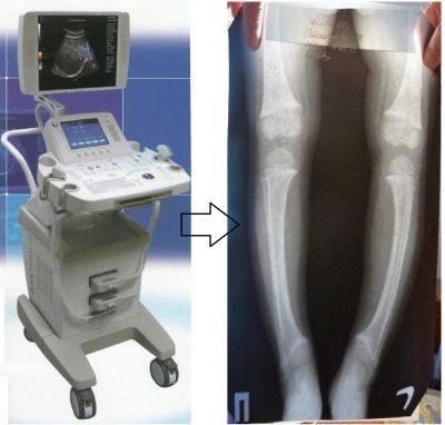 УЗИ тазобедренных суставов у новорожденных: назначение, процедура, расшифровка