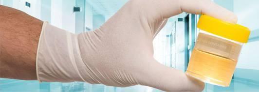 Почему повышены лейкоциты в моче? Ищем причину