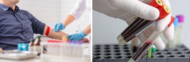 Обнаружен антиген hbsag: о чем это говорит, диагностика, лечение и прогноз
