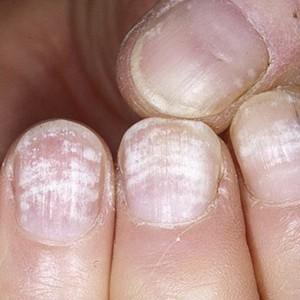 Причины онихолизиса (инфекционные и неинфекционные), лечение отслоения ногтя
