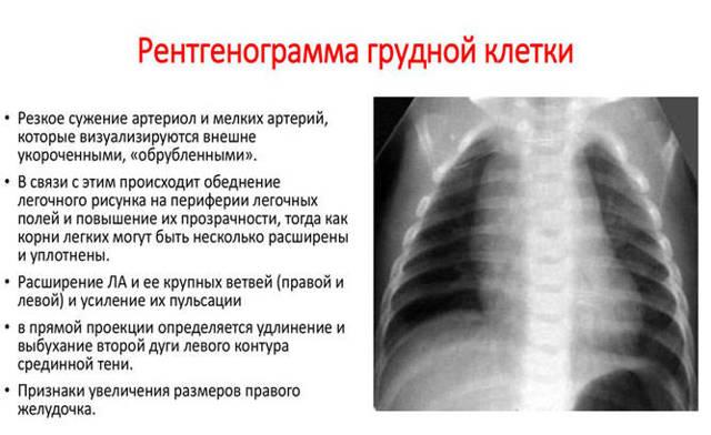 Рентген ребер и органов грудной клетки: назначение и расшифровка рентгенограммы