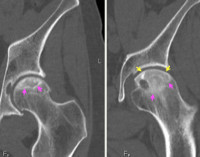 Асептический некроз головки плечевой кости: стадии, диагностика и лечение патологии