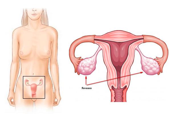 Объем яичников: норма и отклонение от нормы