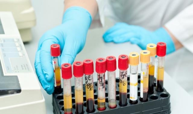 Подготовка к анализам: можно ли пить или есть перед сдачей крови?