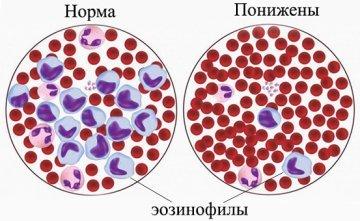 Эозинофилия — что это значит и что делать?