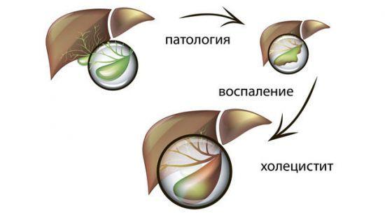 Лечение холецистита: медикаментозные препараты и народные методы