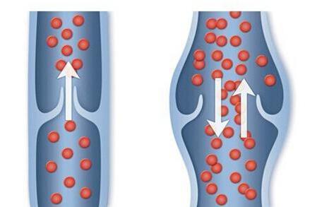 Ретикулярный варикоз нижних конечностей: описание заболевания, его причины и клинические проявления