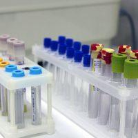 Биохимический анализ крови: подготовка, процедура и расшифровка основных показателей
