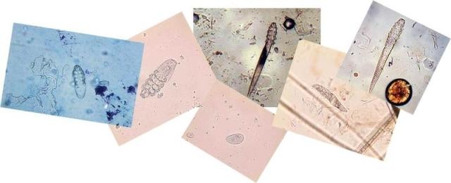 Соскоб на демодекоз: описание метода обследования, диагностика и лечение