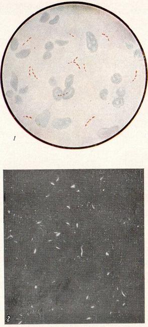Описание бактериоскопического метода исследования и его виды