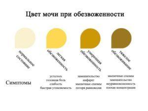 Почему моча темного цвета - физиологические и патологические причины