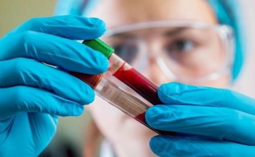 О чем говорит повышенный уровень АЛТ в крови и как его понизить?