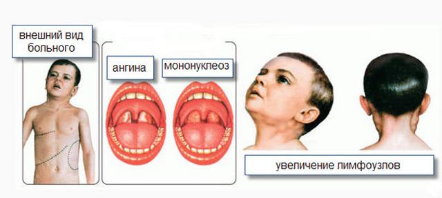 Инфекционный мононуклеоз: диагностика по симптомам и анализу крови