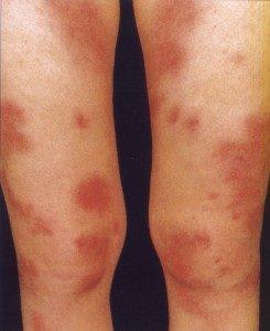 Что такое саркоидоз и как его диагностируют