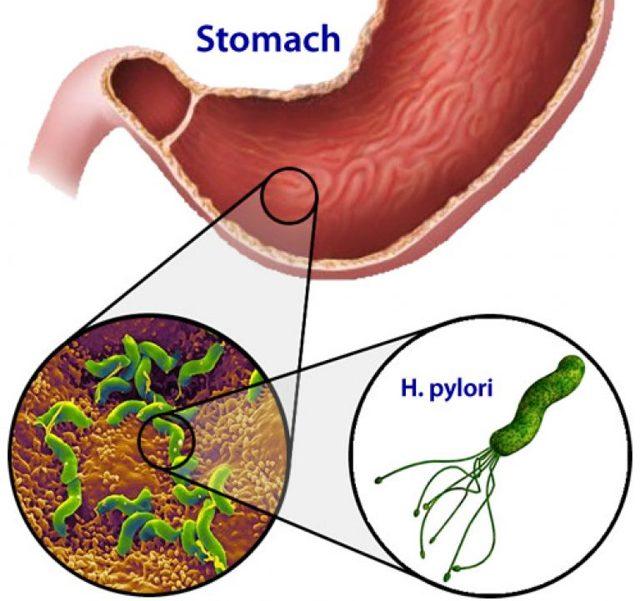 Тест на helicobacter pylori: виды, особенности и расшифровка