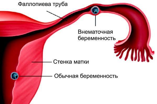 Почему появляется кровь в кале при беременности, лечение и опасность для плода