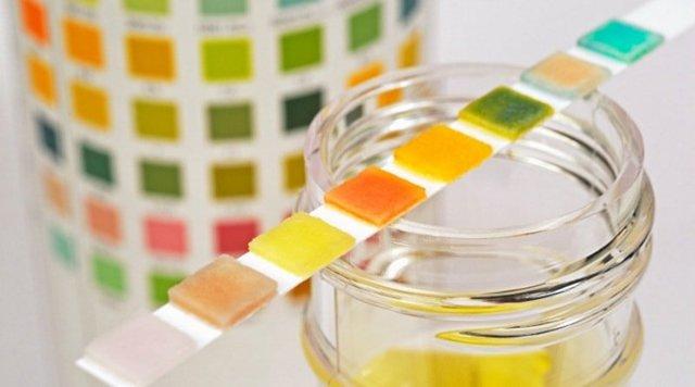 Анализ мочи — повышен белок: причины, симптоматика и назначение на анализ