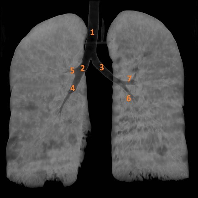 Описание рентгеновских снимков: норма и патология на рентгенограмме