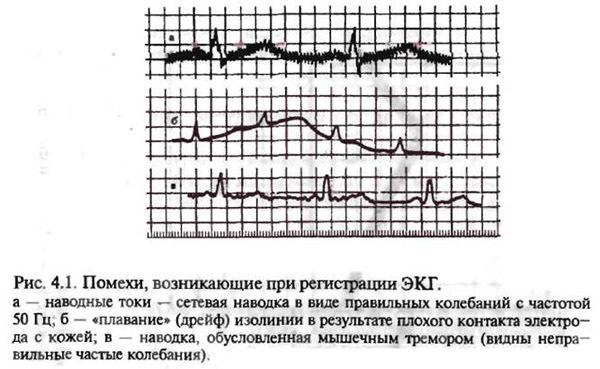 ЭКГ: назначение, подготовка, левограмма на ЭКГ
