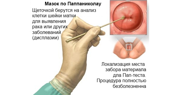 ВПЧ-тест (анализ на вирус папилломы человека): скрининг рака шейки матки, вакцинация