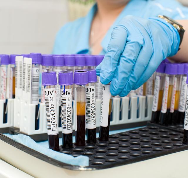 Подготовка к анализу крови: что можно и нельзя есть перед сдачей крови