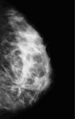 Инволютивные изменения молочных желез: виды, признаки и методика лечения