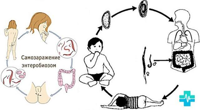 Энтеробиоз у детей: пути заражения, как берут анализ и способы лечения паразитарного заболевания