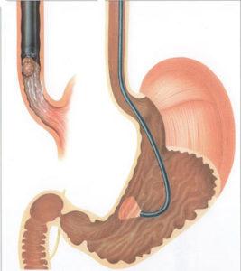 Эзофагогастродуоденоскопия диагностическая: подготовка, процедура и возможные результаты