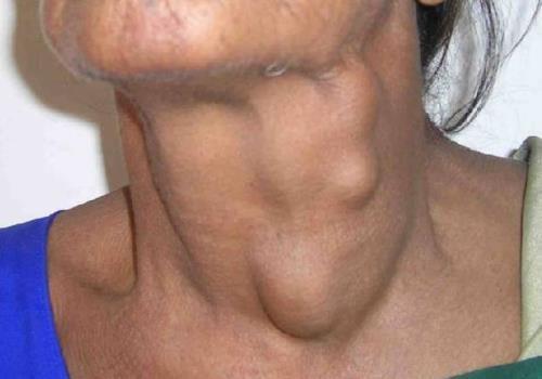 Липома на шее: причины появления, признаки, методы лечения и удаления жировика
