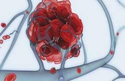 Причины увеличение печени и селезенки, диагностика, последствия и лечение