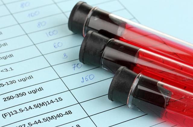 Анализ крови на свертываемость: норма показателей и причины отклонения