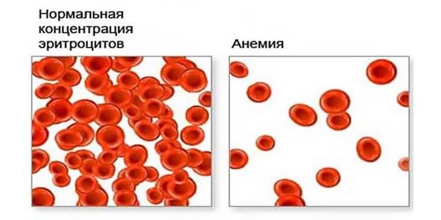 Макроцитарная анемия: что это такое, причины, признаки и методика лечения