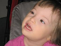 Синдром Дауна: симптомы после рождения и прогноз для жизни