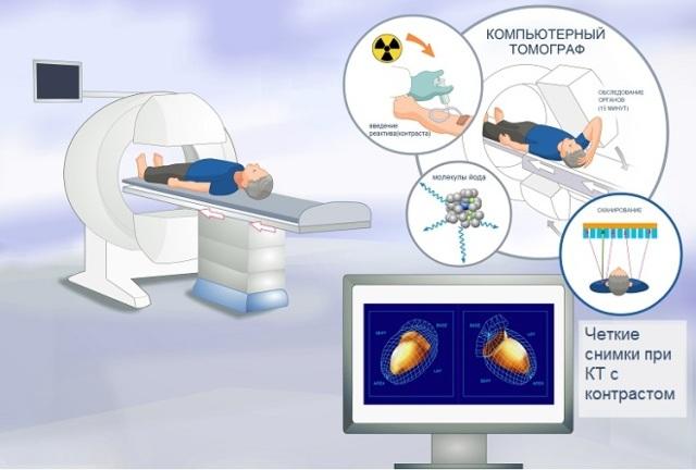Компьютерная томография - что это: виды, подготовка, процедура обследования и возможные противопоказания