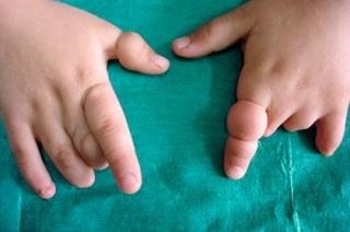 Амниотические перетяжки: причины развития патологи и возможные последствия