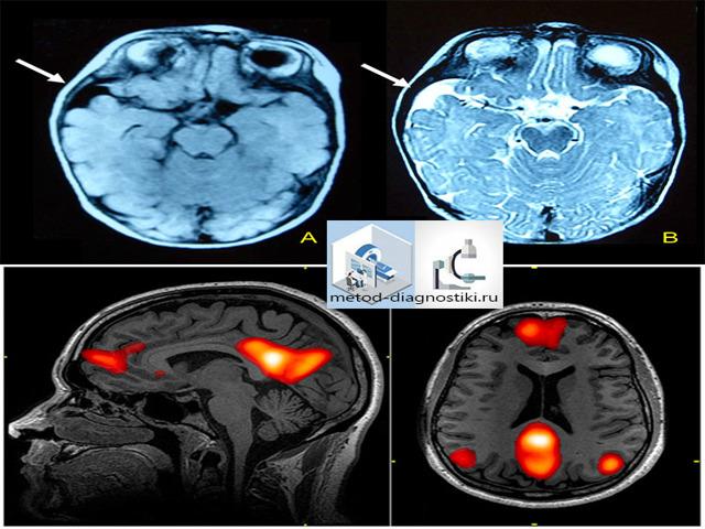 МРТ головного мозга. Как делают, что показывает, сколько стоит и где сделать в Москве?